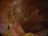 adhesiolysis-0871pic02