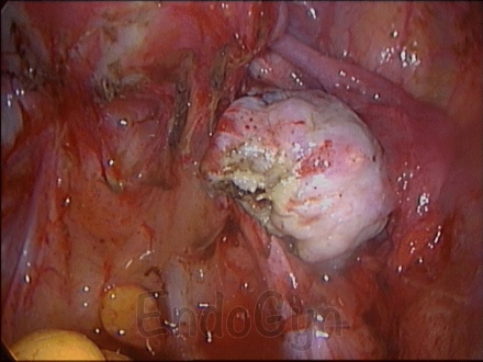 endometriosis - photo #17